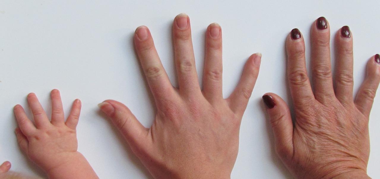 Melanoma a köröm alatt: ritka, de létezik